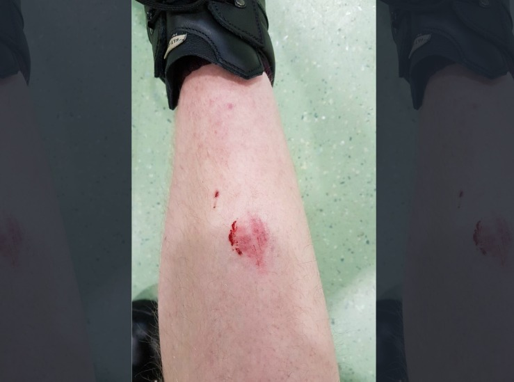 A police officer was bitten on the leg while on duty at the weekend. Picture: North Wales Police Federation